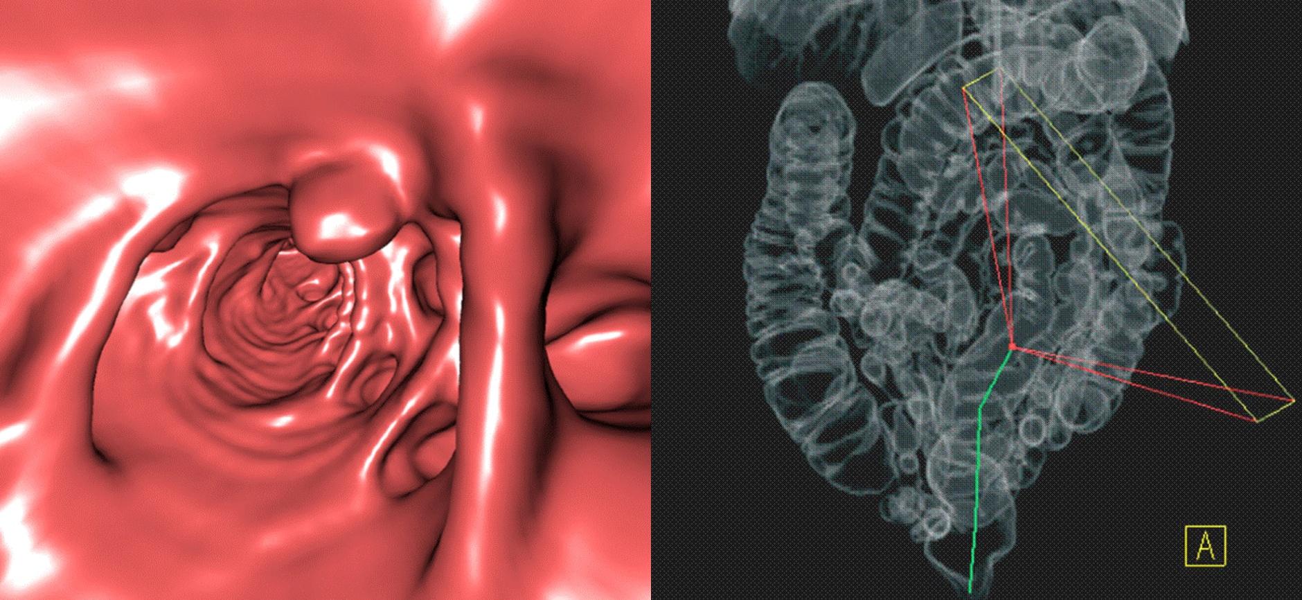 Die Radiologen | Virtuelle Coloskopie (3D) - Die Radiologen